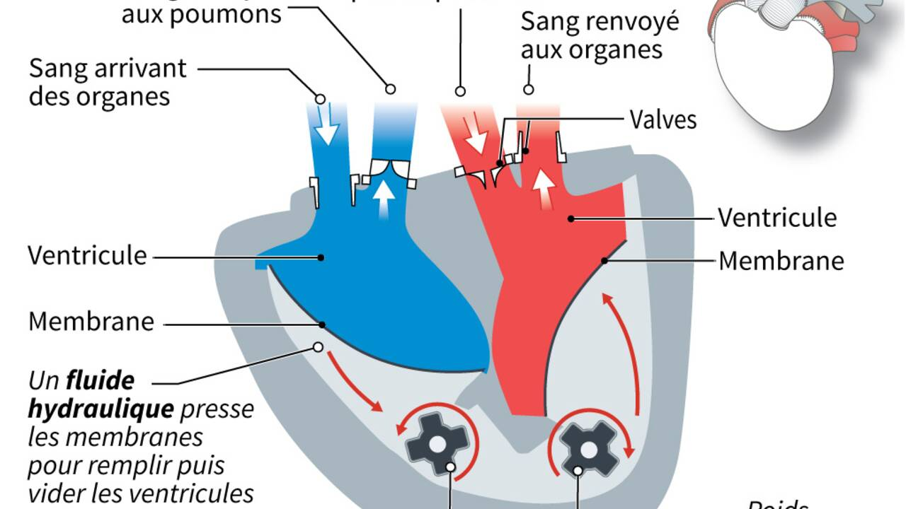 Un patient greffé du coeur après avoir reçu pendant 8 mois un coeur artificiel Carmat