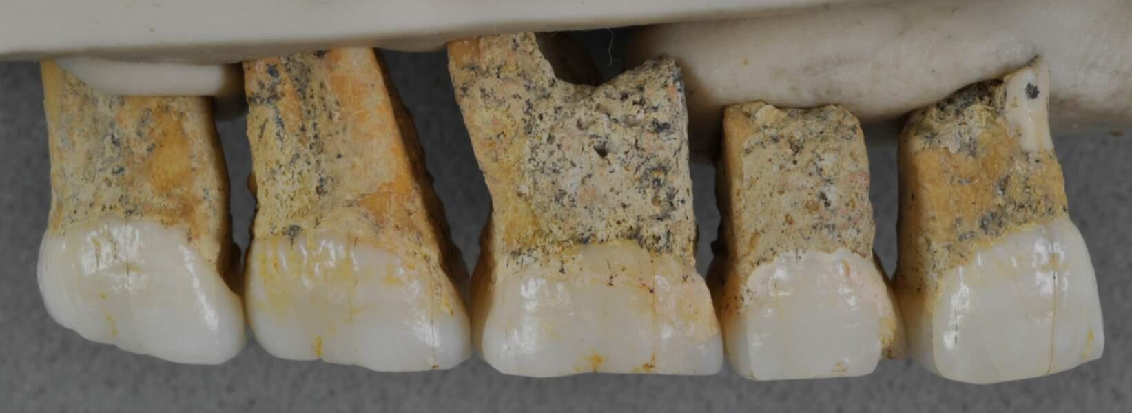 Treize fossiles révélés à près de trois mètres de profondeur