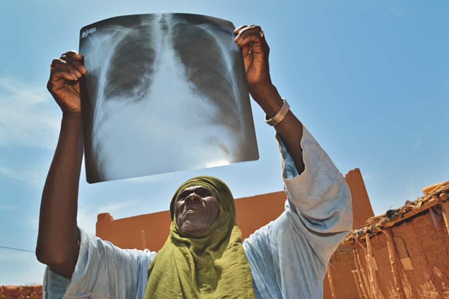 D'anciens employés des mines souffrent de maladies pulmonaires