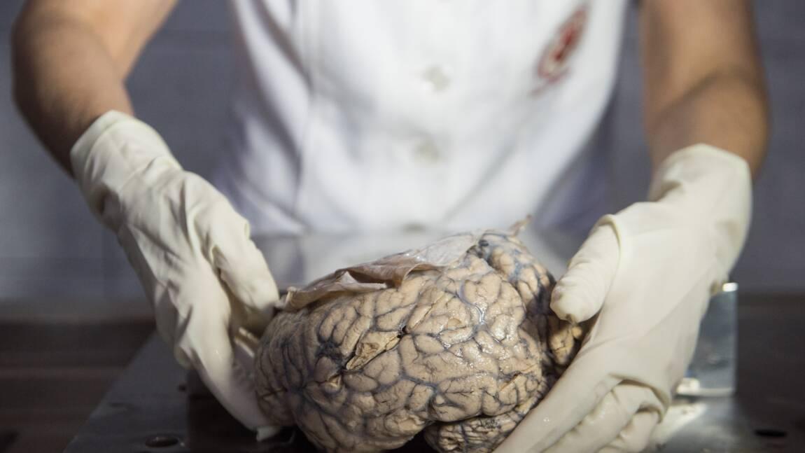 Au Pérou, un musée pour scruter les cerveaux malades