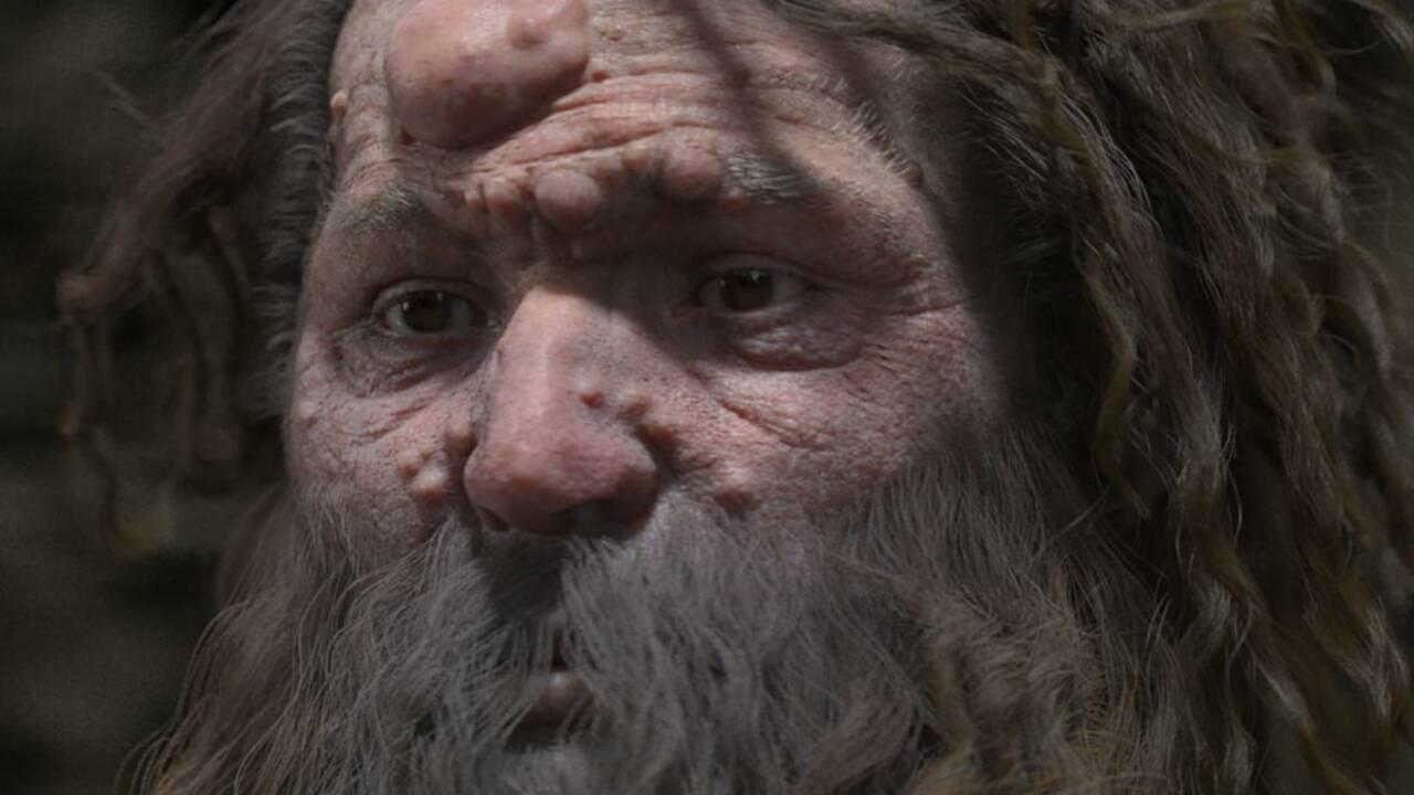 L'homme de Cro-Magnon avait le visage couvert de nodules