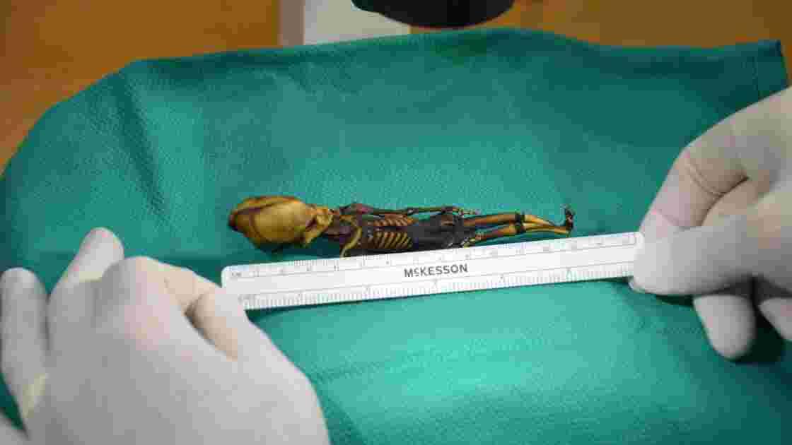 Le squelette du désert d'Atacama était une fille