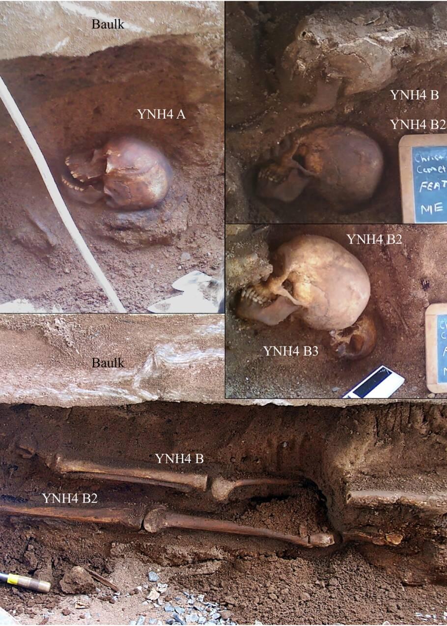 Des squelettes découverts dans le Connecticut éclairent sur la vie des immigrés au XIXe siècle