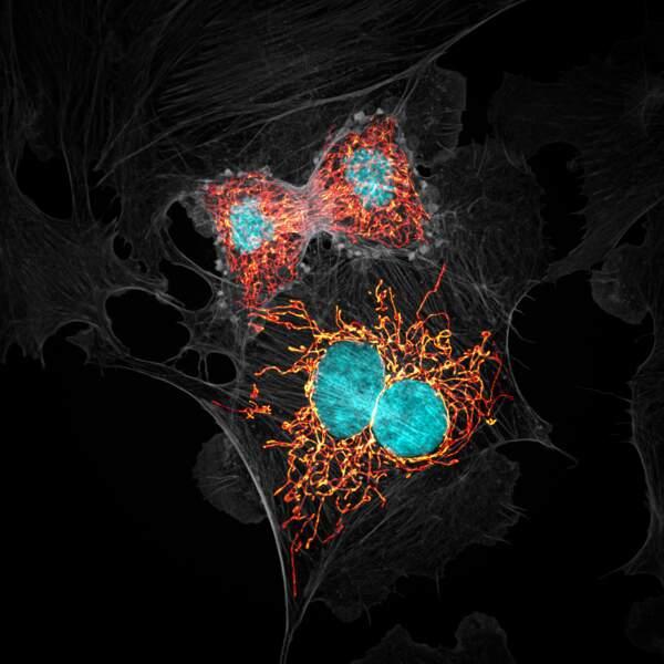 10. Des cellules endothéliales artérielles pulmonaires bovines au stade de la mitose, grossies 63 fois