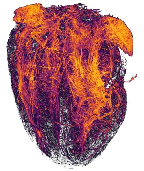 20.  Les vaisseaux sanguins d'un coeur de souris après un infarctus, grossis 2 fois.