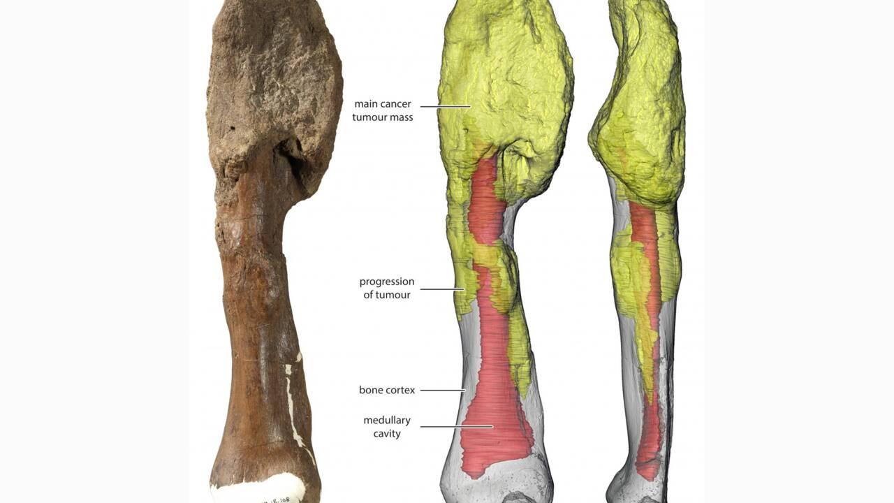Un cancer des os diagnostiqué pour la première fois sur un fossile de dinosaure