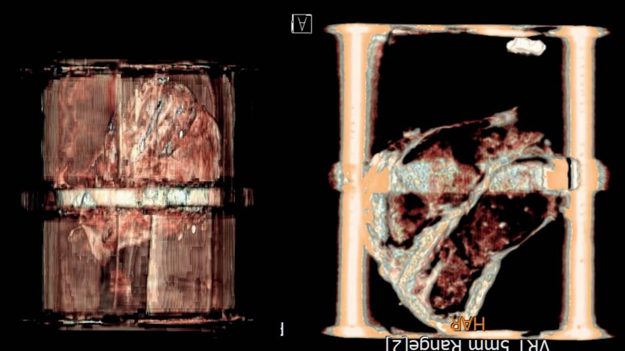 Belgique : le coffret trouvé dans une fontaine contient bien le coeur d'un ancien bourgmestre
