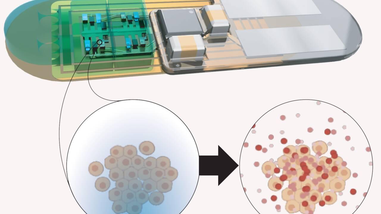 Des scientifiques veulent créer un implant pour lutter contre le jet lag