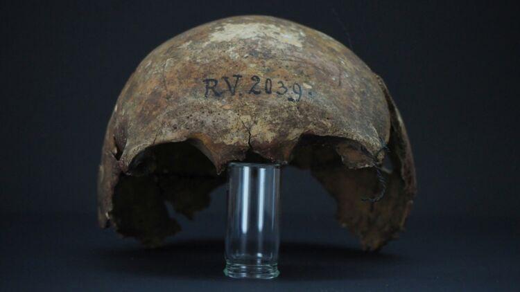 Le crâne du chasseur-cueilleur possédant la bactérie de la peste