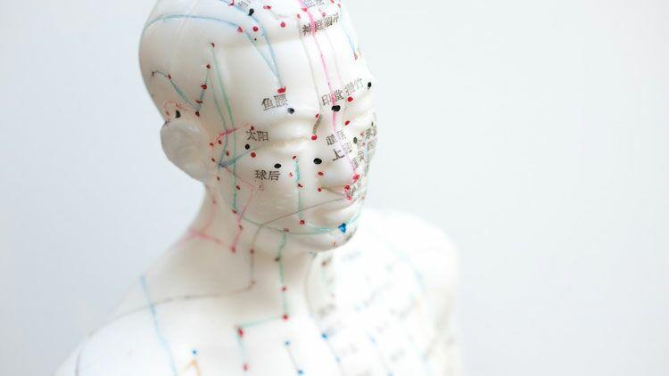 acupuncture, aiguille, médecine