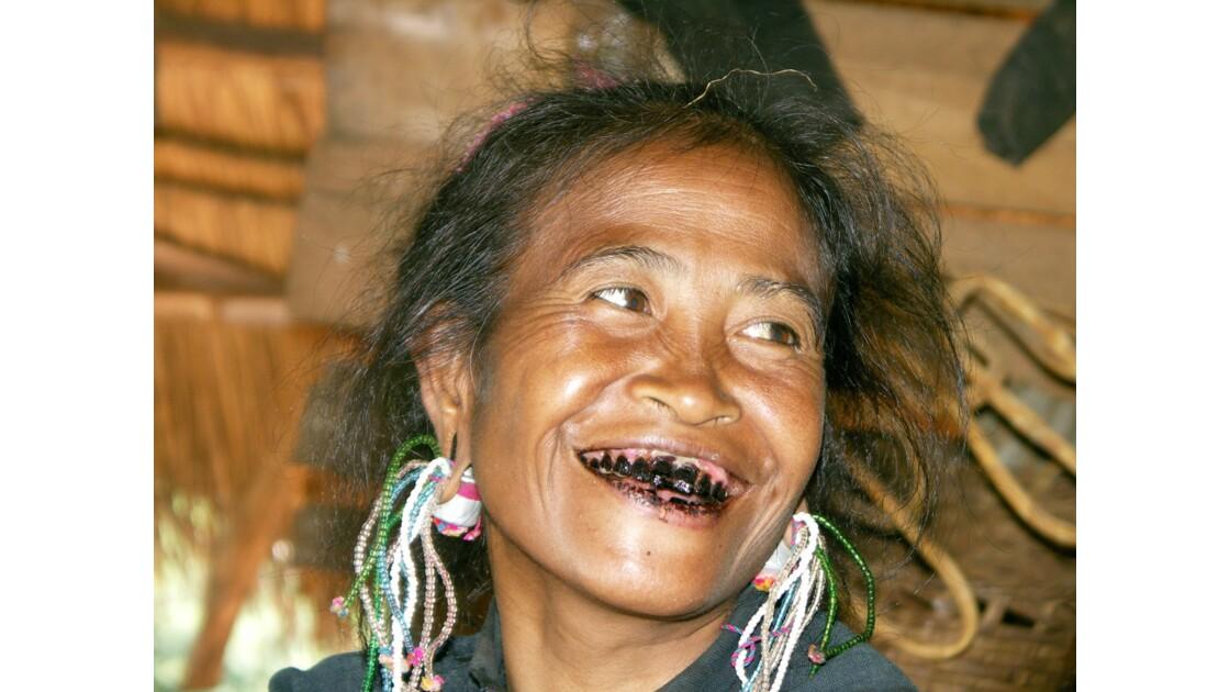 La femme aux dents noires